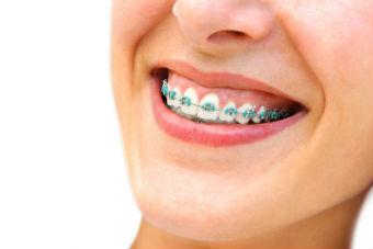Orthodontist Den Haag